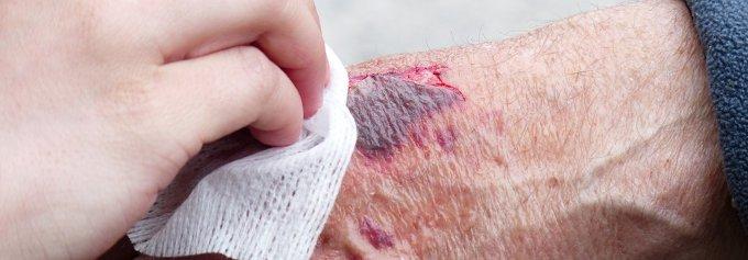 Qué hacer ante un accidente laboral